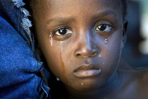 bambini fame terzo mondo